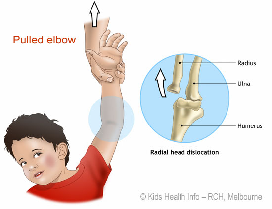 Nursemaid's Elbow